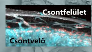Transz-kortikális vérerek a csontban
